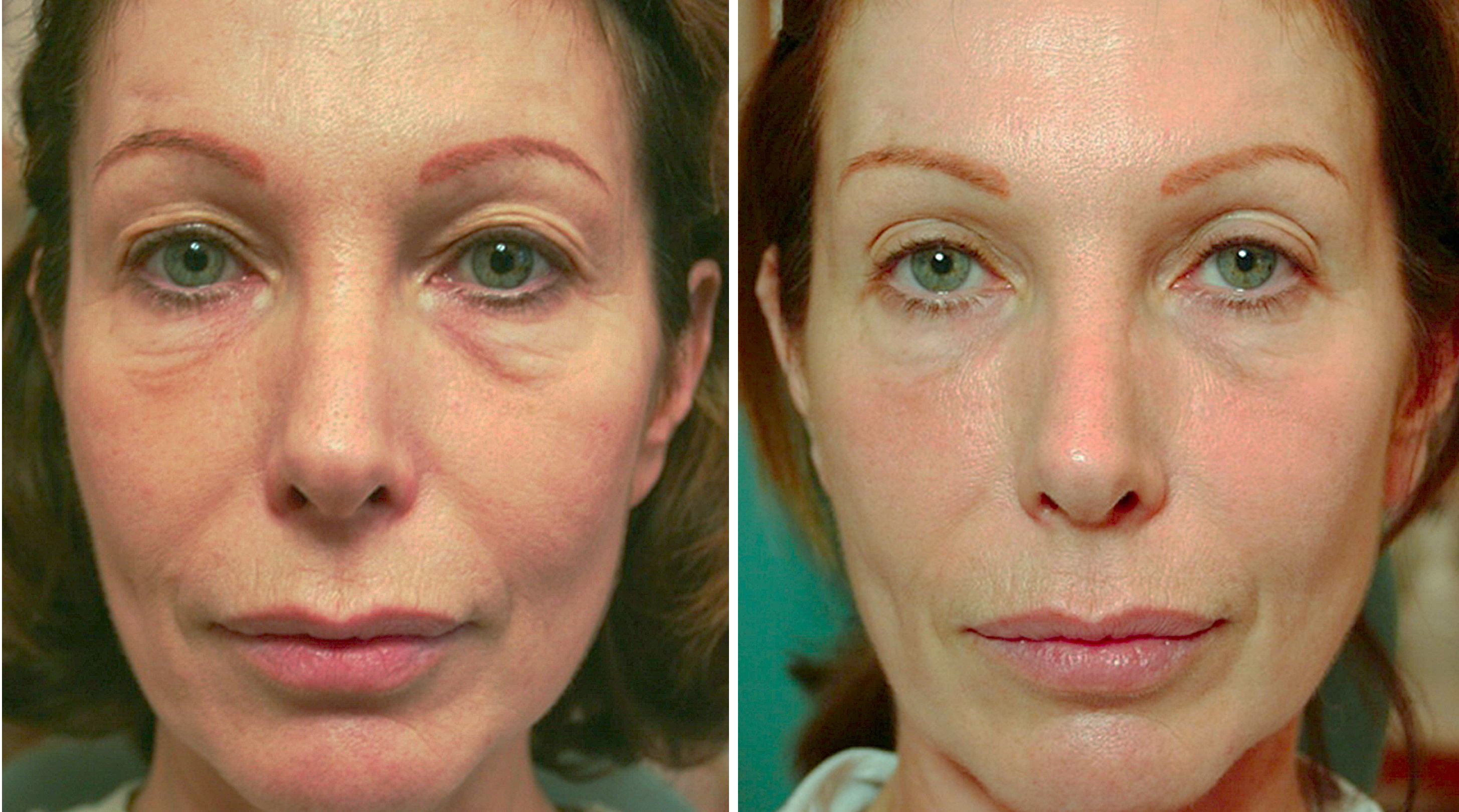 10 month results of fulll face treatment by Nelly Gauthier, MD