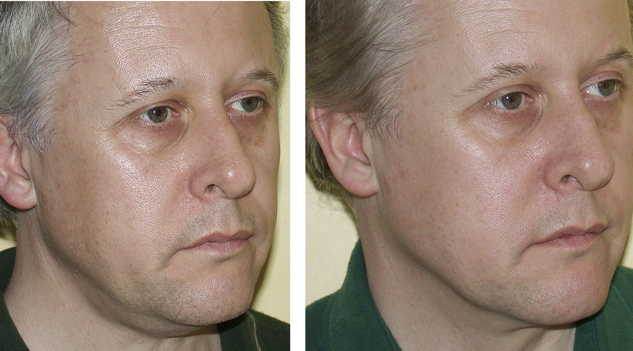 8 month results of combination treatment, Thermage + Botox, by Malthily Nandedkar, M.D..