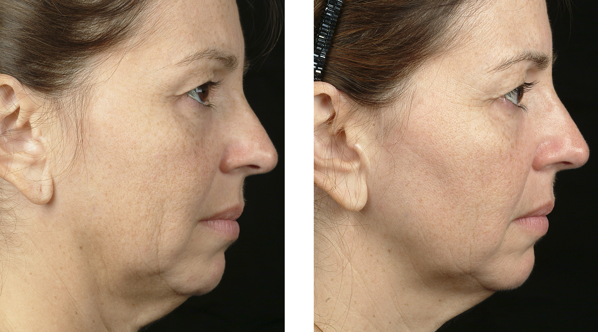Mid/Lower face and neck treatment  by Flor Mayoral, MD.1.5cm tip, pre and 6 month follow up